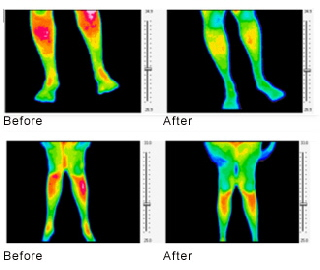 thermalscan_knees